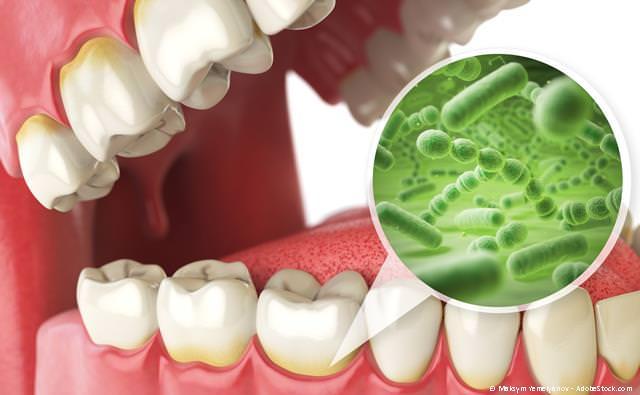 Parodontologie bei Zahnfleischentzündungen, Zahnlockerungen